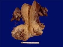 宫颈鳞状细胞癌