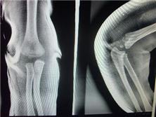 肱骨远端全骺分离