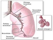 急性侵袭型肺曲霉病
