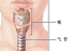 喉气管瘢痕性狭窄