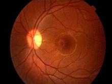 获得性视网膜劈裂