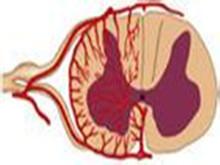 脊髓前动脉综合征