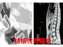 结核性脊髓炎