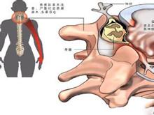 颈椎椎管狭窄症
