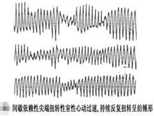 间歇依赖型尖端扭转型室性心动过速