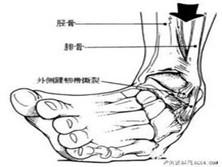 踝關節骨折