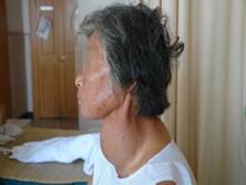 甲状腺腺瘤