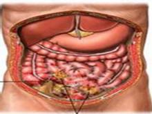 继发性化脓性腹膜炎