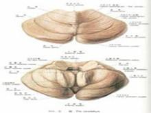 肌阵挛性小脑协调障碍