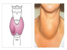 甲状腺功能正常的甲状腺肿大