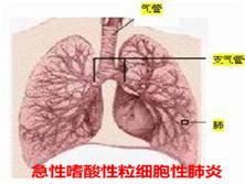 急性嗜酸性粒细胞性肺炎