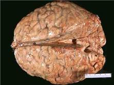 感染性急性中毒脑病