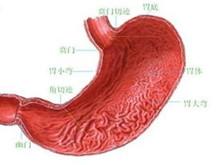 急性化脓性胃炎