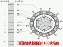 家族性载脂蛋白B100缺陷症