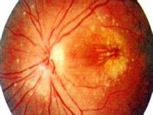 后天性视网膜劈裂