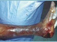 混合性厭氧菌感染