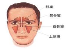 化脓性鼻窦炎