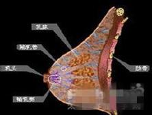 化脓性乳腺炎