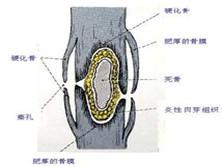 脊椎化脓性骨髓炎