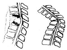 脊椎结核并发截瘫