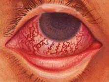 急性闭角性青光眼