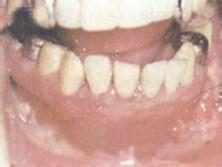 急性颌骨骨髓炎