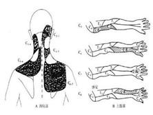 颈神经背支卡压症