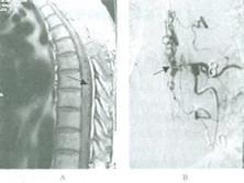 间接型颈动脉海绵窦瘘