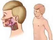 急性化膿性腮腺炎
