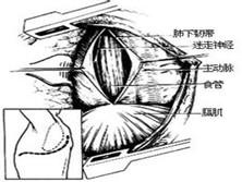 经膈肌肋间疝