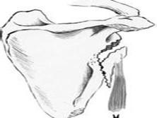 肩胛颈及肩胛盂骨折