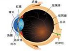 继发于无晶状体眼和人工晶状体眼的青光眼