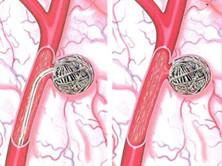 老年主動脈瘤