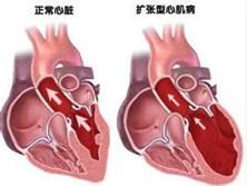 老年擴張型心肌病