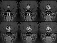 颅内畸胎瘤