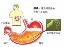 老年胃食管反流病