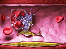 老年播散性血管內凝血