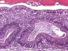 卵巢混合性生殖细胞-性索间质肿瘤