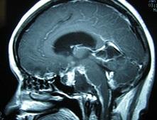 老年结核性脑膜炎