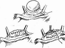 卵巢恶性混合性中胚叶瘤