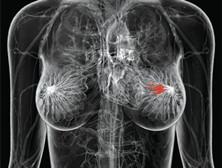 老年乳腺癌