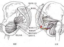 梨状肌症候群