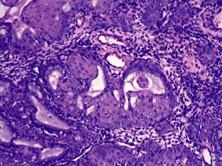 良性纤维组织细胞瘤