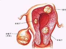 卵巢肿瘤破裂