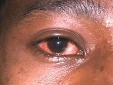 淋菌性结膜炎