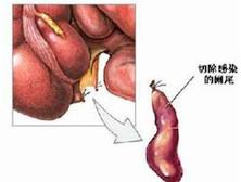 老年急性闌尾炎