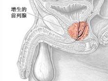 良性前列腺增生