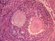 卵巢纤维组织来源肿瘤