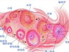 卵泡腺细胞增殖综合征