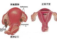 卵巢巧克力囊肿破裂